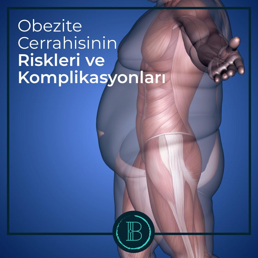 Obezite Cerrahisinin Riskleri ve Komplikasyonları - Prof. Dr. Burak Kavlakoğlu
